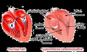 afbeelding hart hcm website